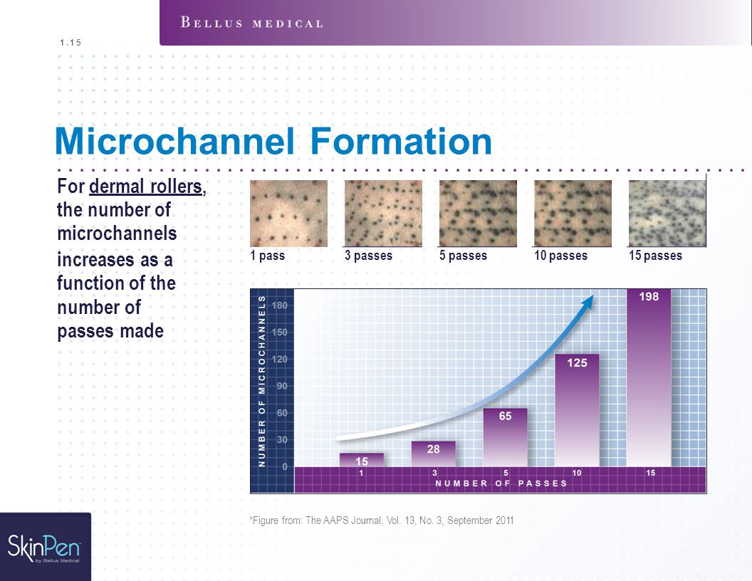 Microchannel Formation