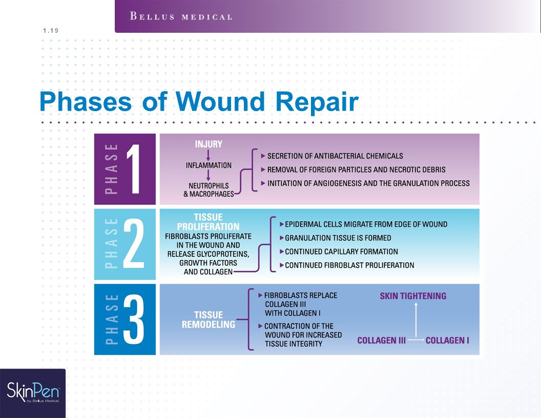 Phases of Wound Repair Inflammatory Phase (1-3 days)
