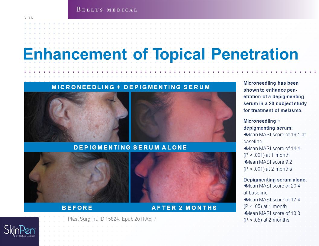 Enhancement of Topical Penetration