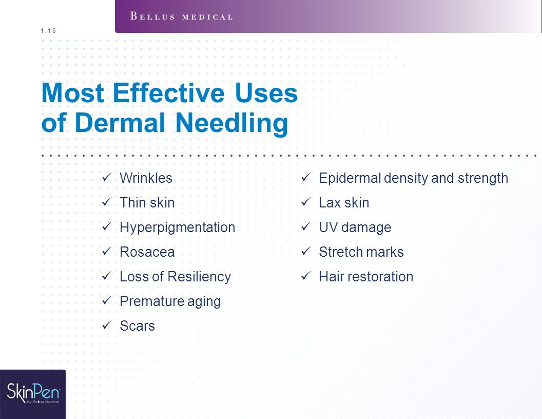 Most Effective Uses of Dermal Needling