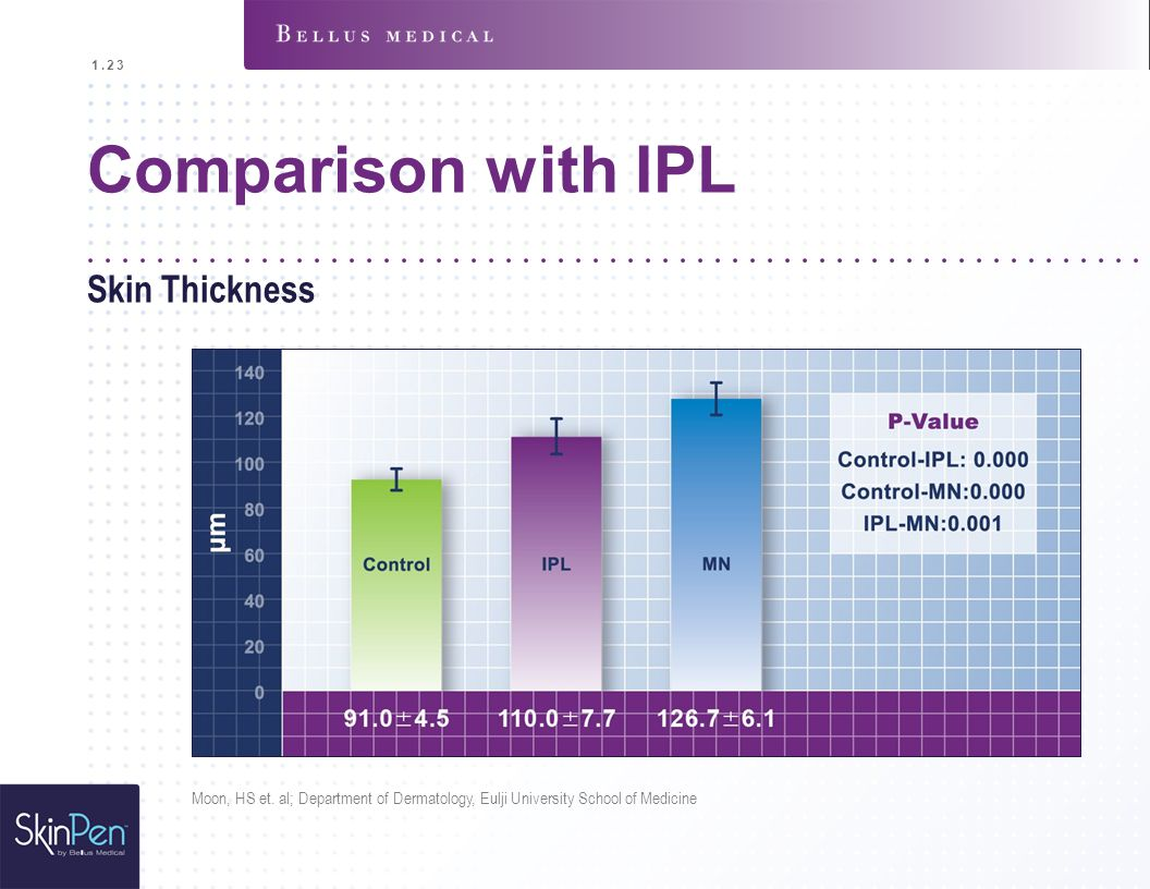 Comparison with IPL Skin Thickness