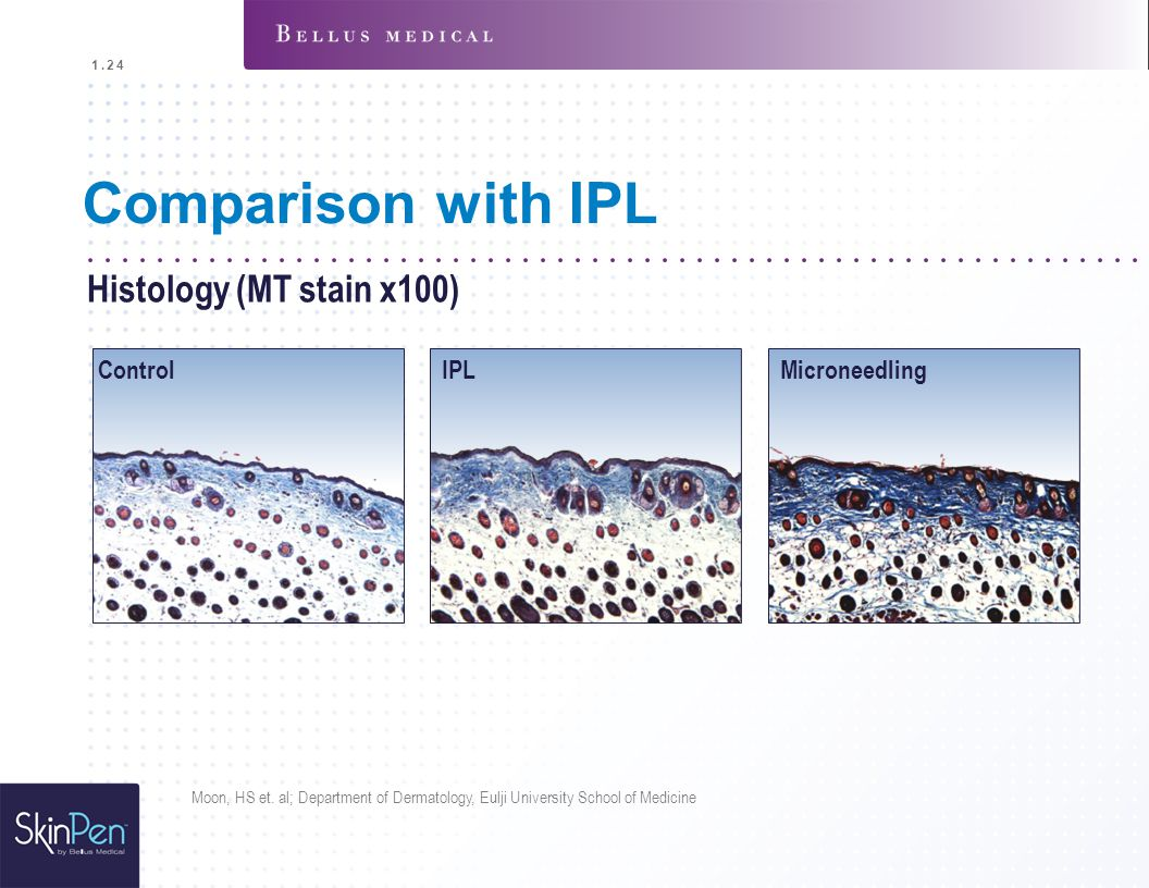 Comparison with IPL Histology (MT stain x100) Control IPL