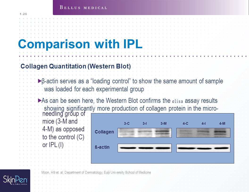 1.26 Comparison with IPL. Collagen Quantitation (Western Blot)