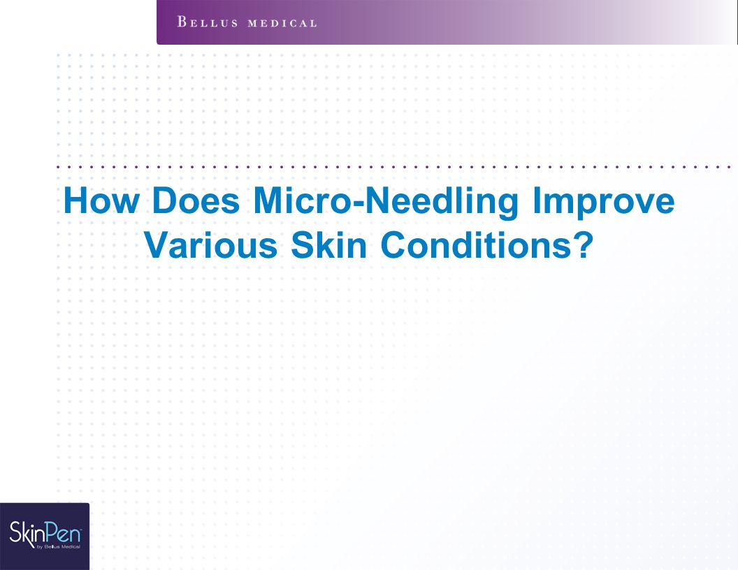 How Does Micro-Needling Improve Various Skin Conditions