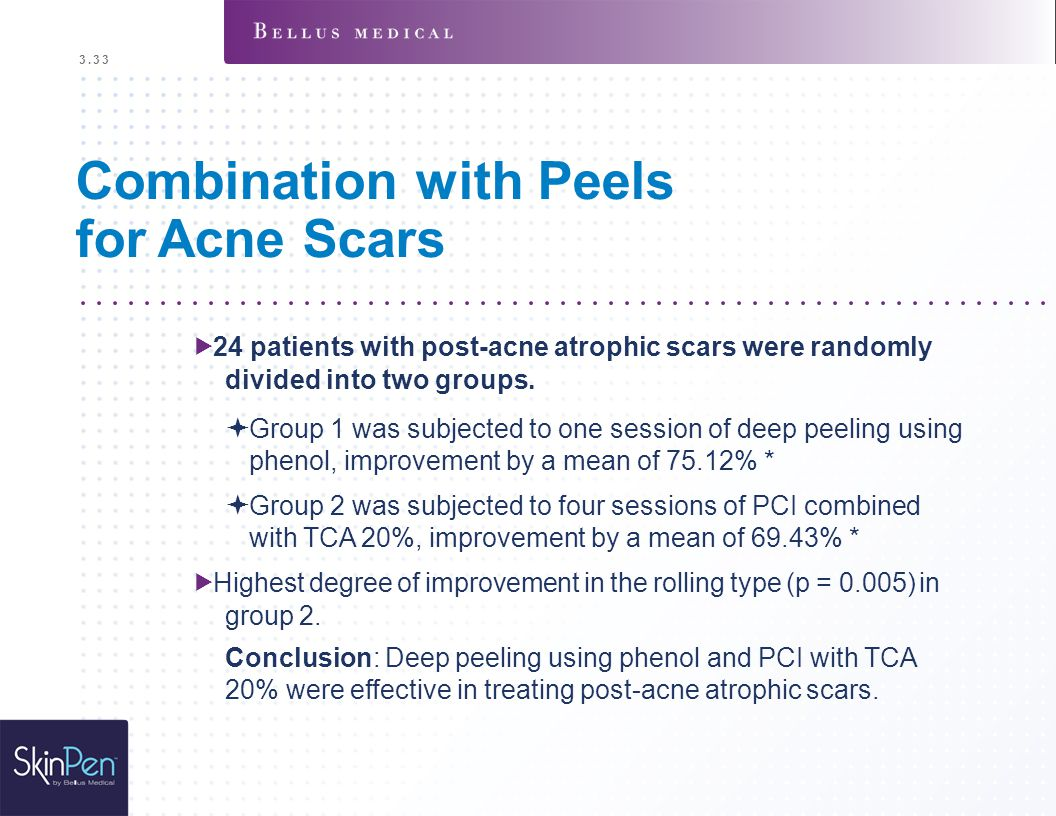Combination with Peels for Acne Scars