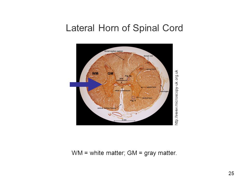 Lateral Horn of Spinal Cord