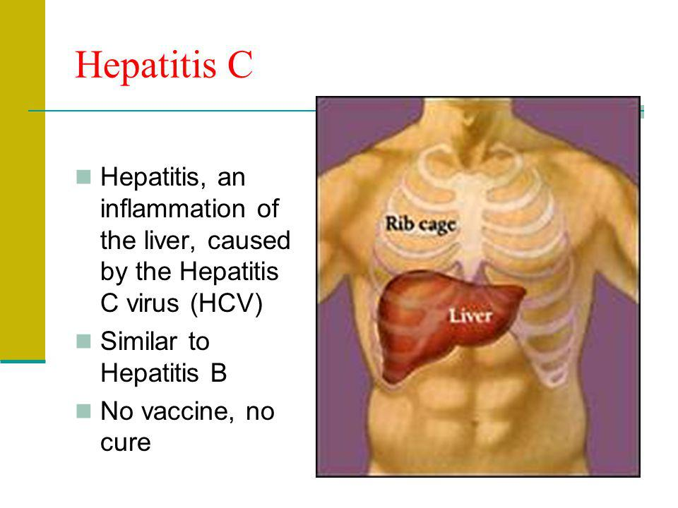 Hepatitis C Hepatitis, an inflammation of the liver, caused by the Hepatitis C virus (HCV) Similar to Hepatitis B.