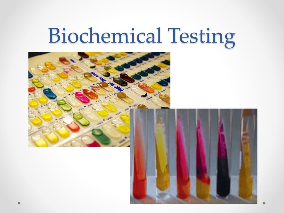 Biochemical Testing