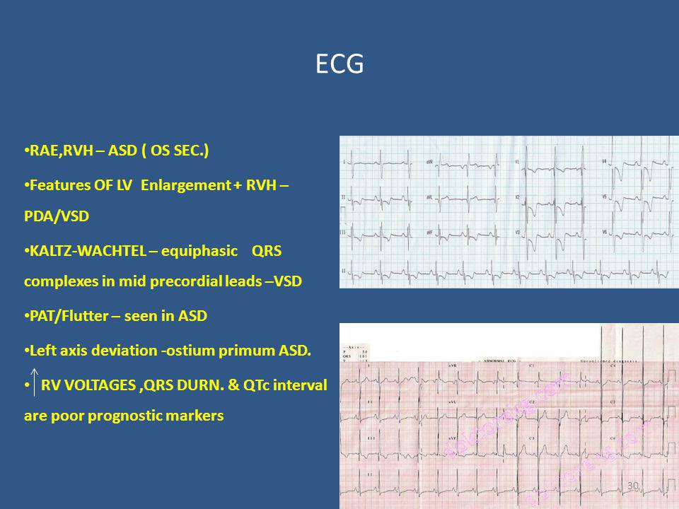 ECG RAE,RVH – ASD ( OS SEC.)