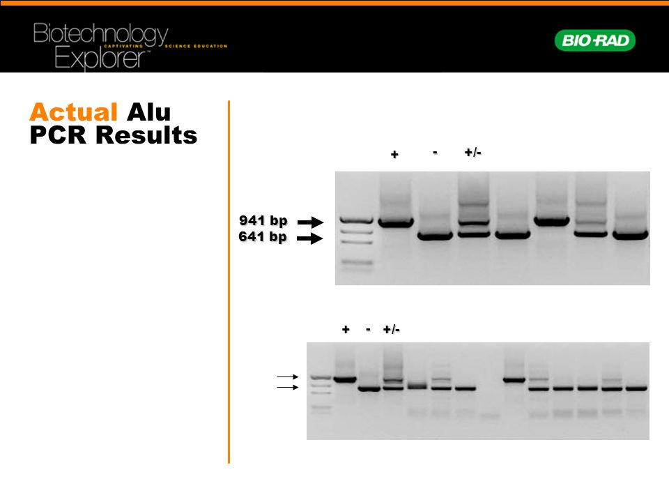 Actual Alu PCR Results + - +/- 941 bp 641 bp + - +/-