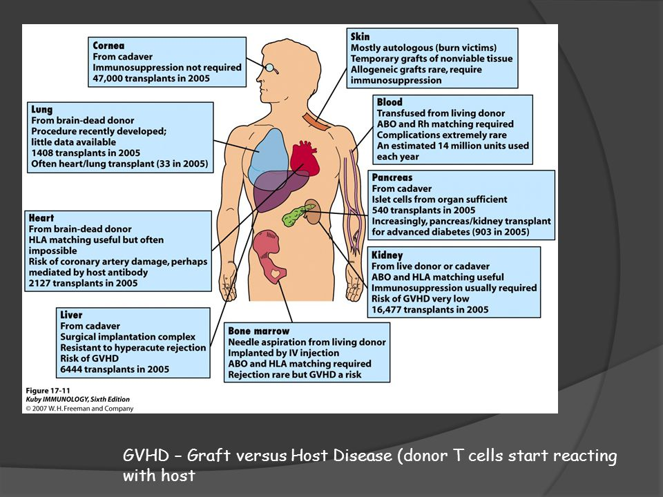 GVHD – Graft versus Host Disease (donor T cells start reacting