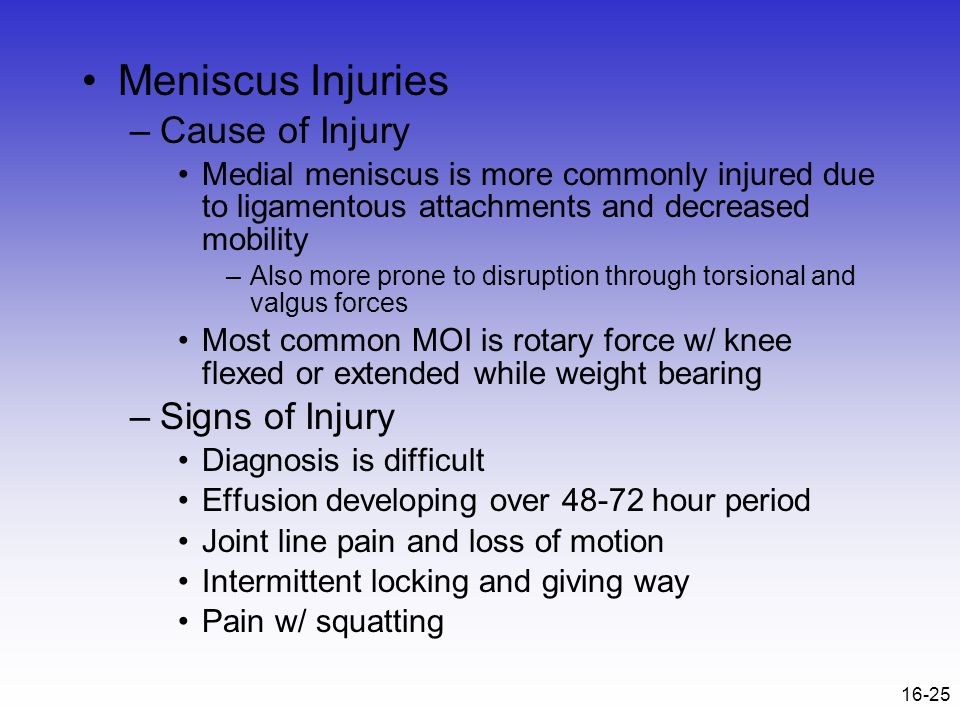 Meniscus Injuries Cause of Injury Signs of Injury