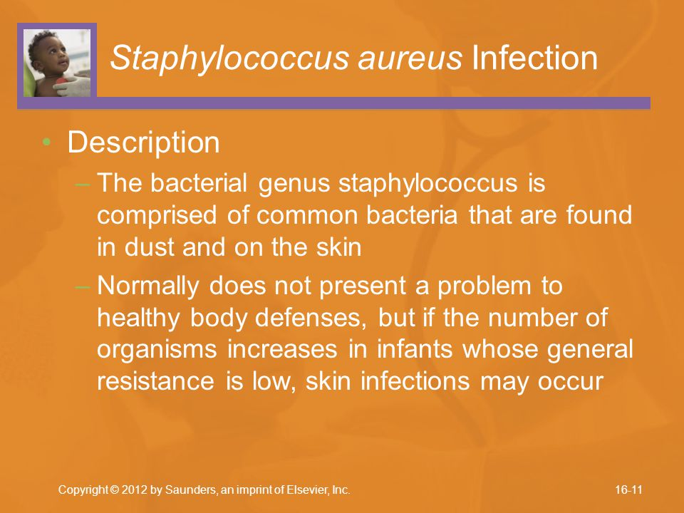 Staphylococcus aureus Infection