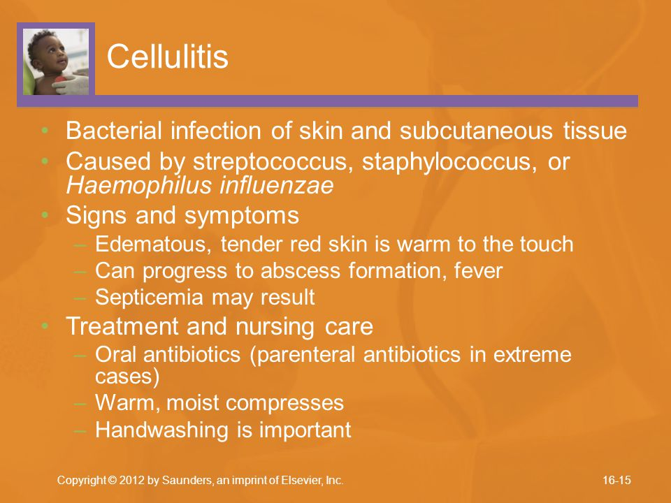 Cellulitis Bacterial infection of skin and subcutaneous tissue
