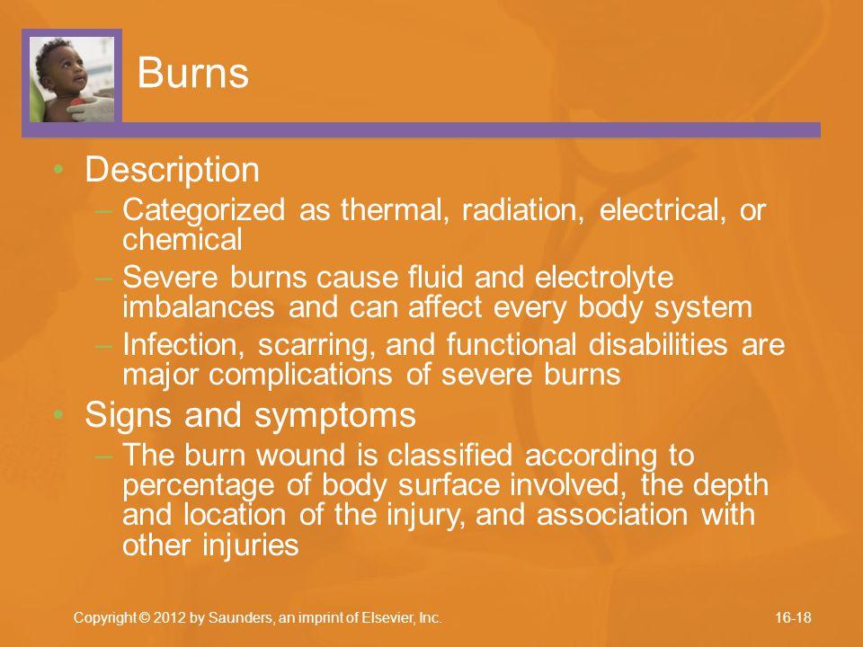 Burns Description Signs and symptoms