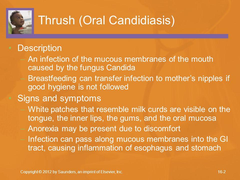 Thrush (Oral Candidiasis)