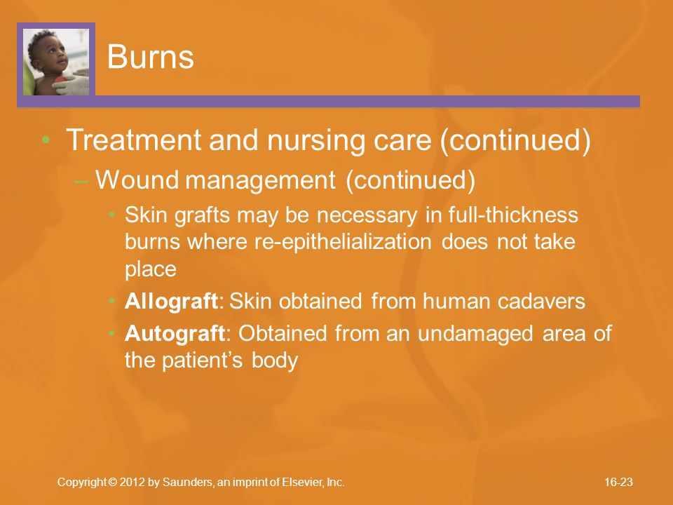 Burns Treatment and nursing care (continued)