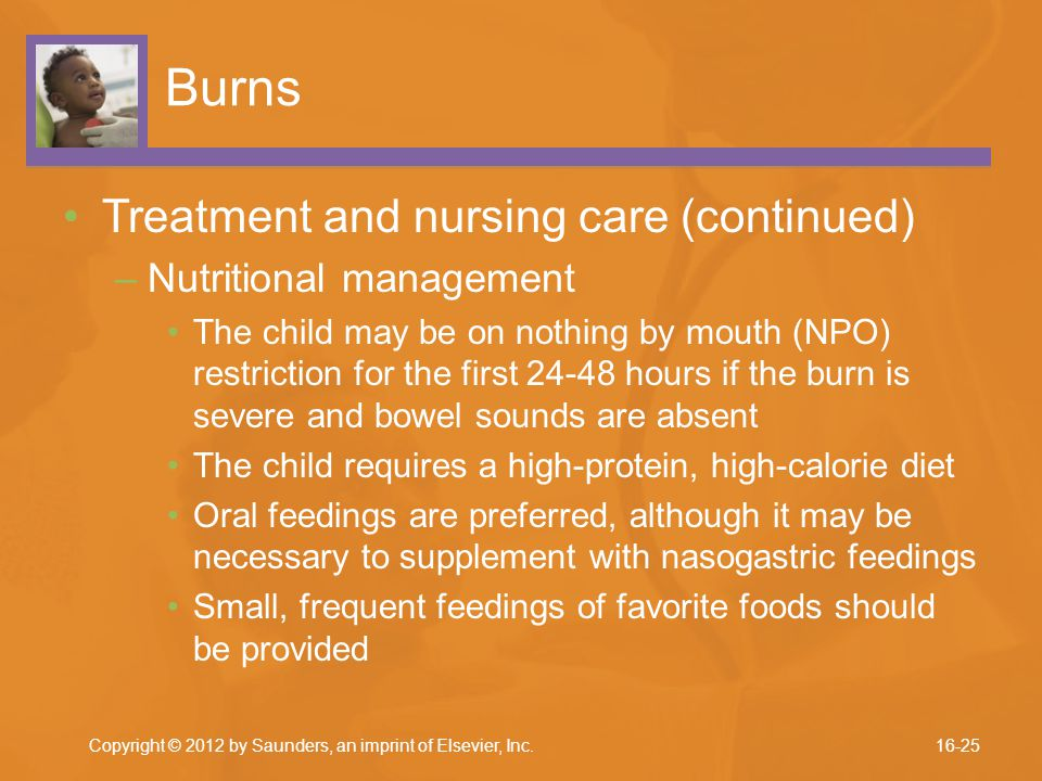 Burns Treatment and nursing care (continued) Nutritional management