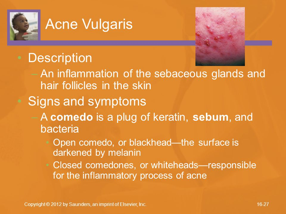 Acne Vulgaris Description Signs and symptoms