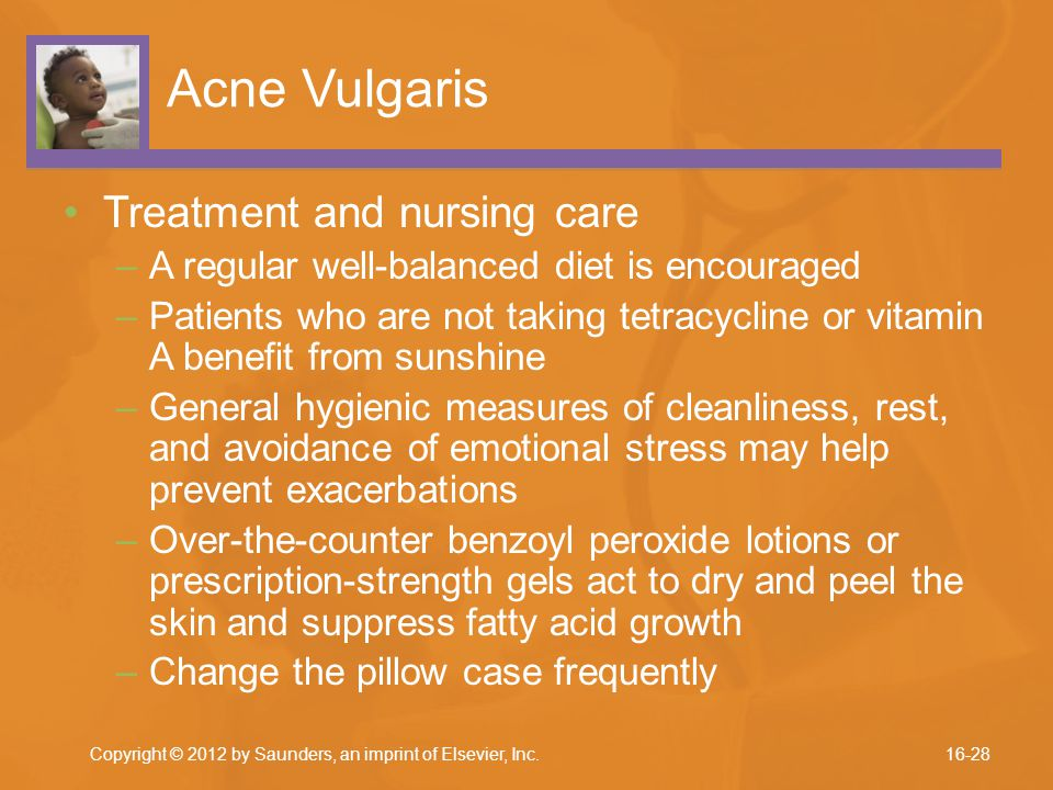 Acne Vulgaris Treatment and nursing care