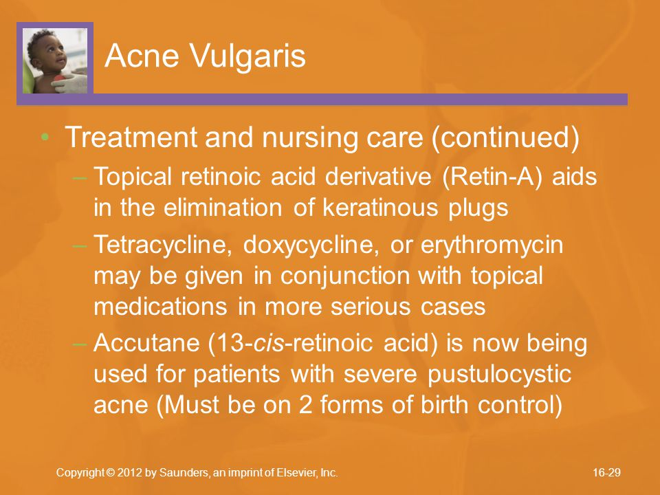 Acne Vulgaris Treatment and nursing care (continued)