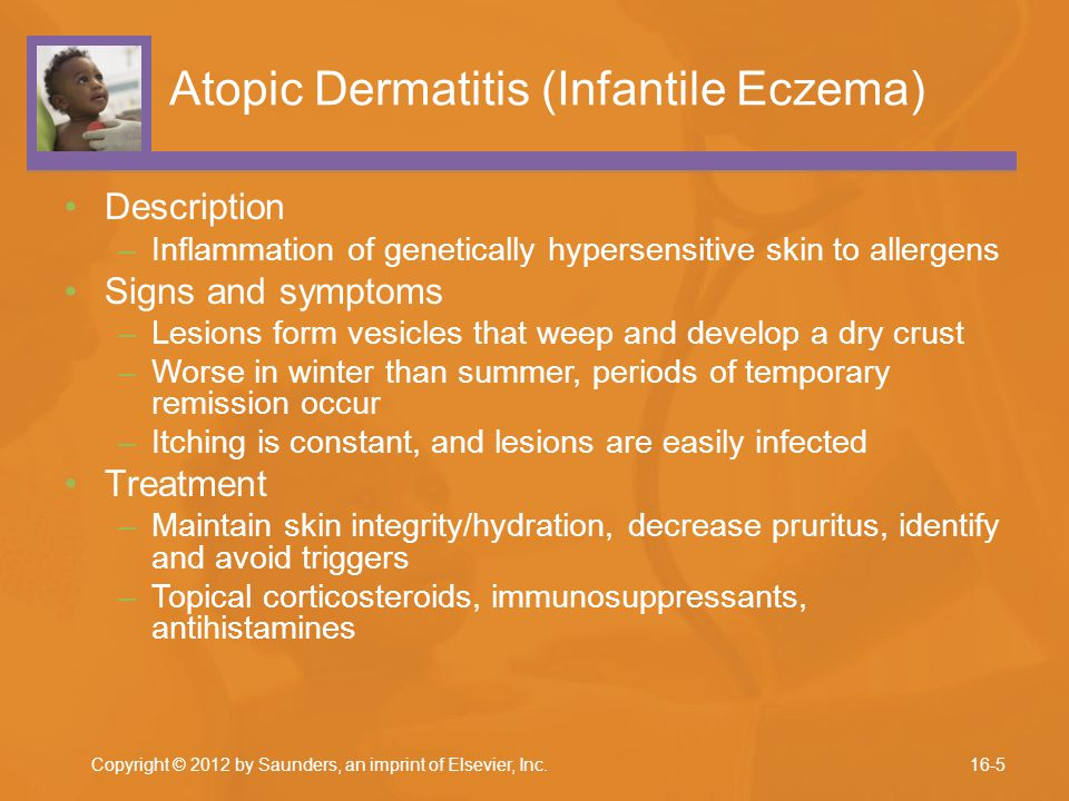 Atopic Dermatitis (Infantile Eczema)