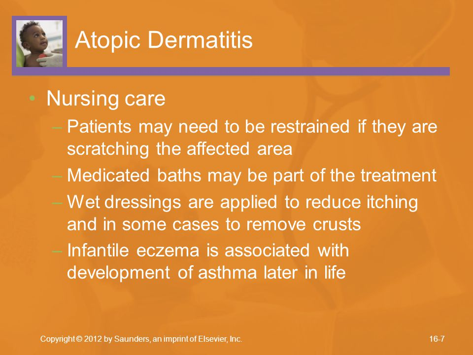 Atopic Dermatitis Nursing care