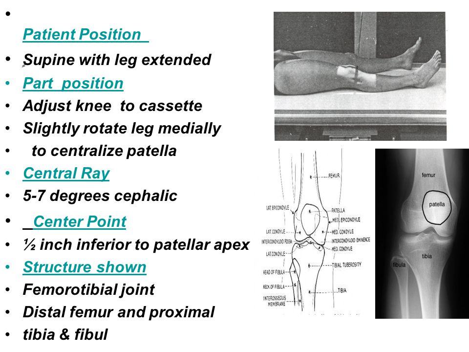 ٍSupine with leg extended
