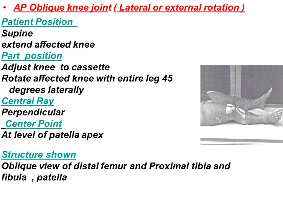 AP Oblique knee joint ( Lateral or external rotation )