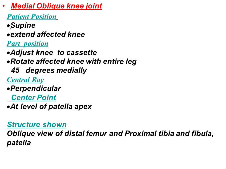 Medial Oblique knee joint