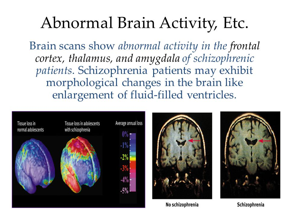 Abnormal Brain Activity, Etc.