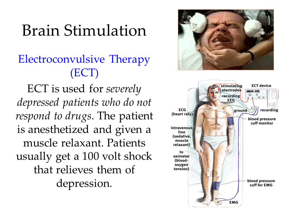 Electroconvulsive Therapy (ECT)