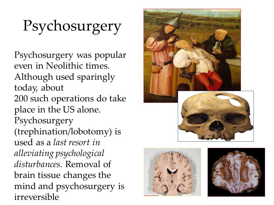 Psychosurgery Psychosurgery was popular even in Neolithic times. Although used sparingly today, about.