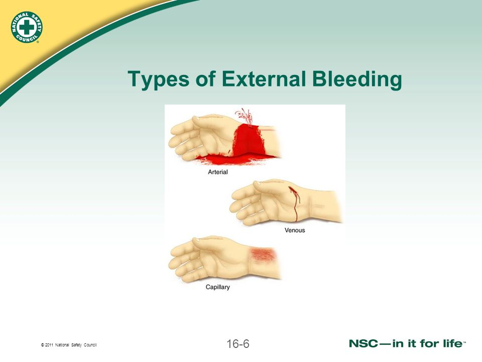 Types of External Bleeding