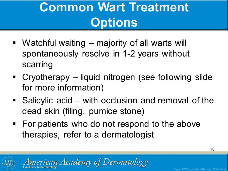 Common Wart Treatment Options