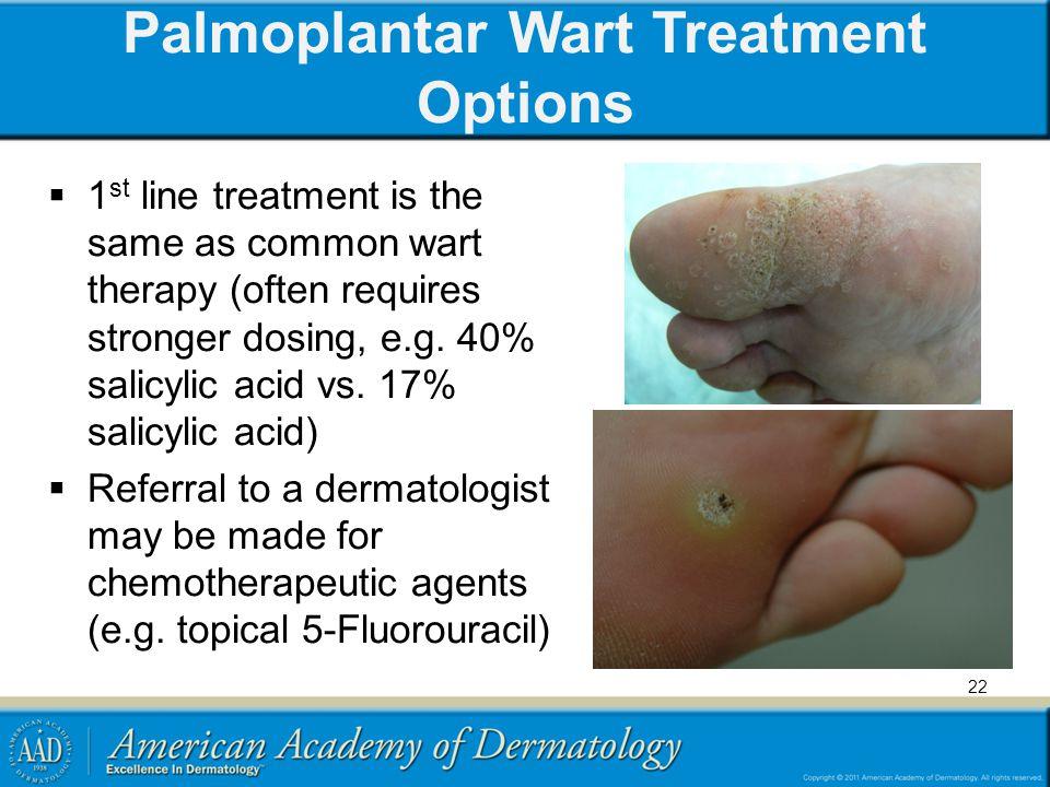 Palmoplantar Wart Treatment Options