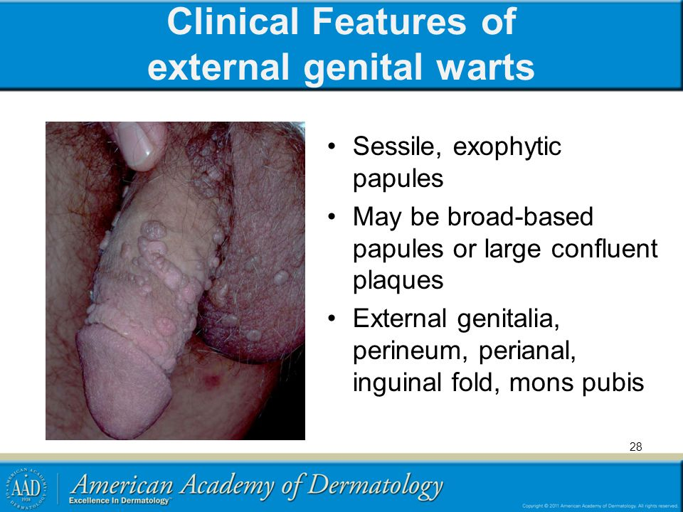 Clinical Features of external genital warts