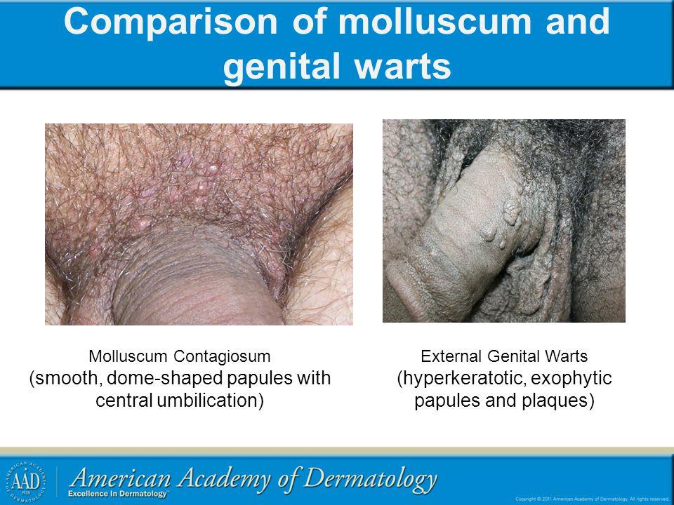 Comparison of molluscum and genital warts