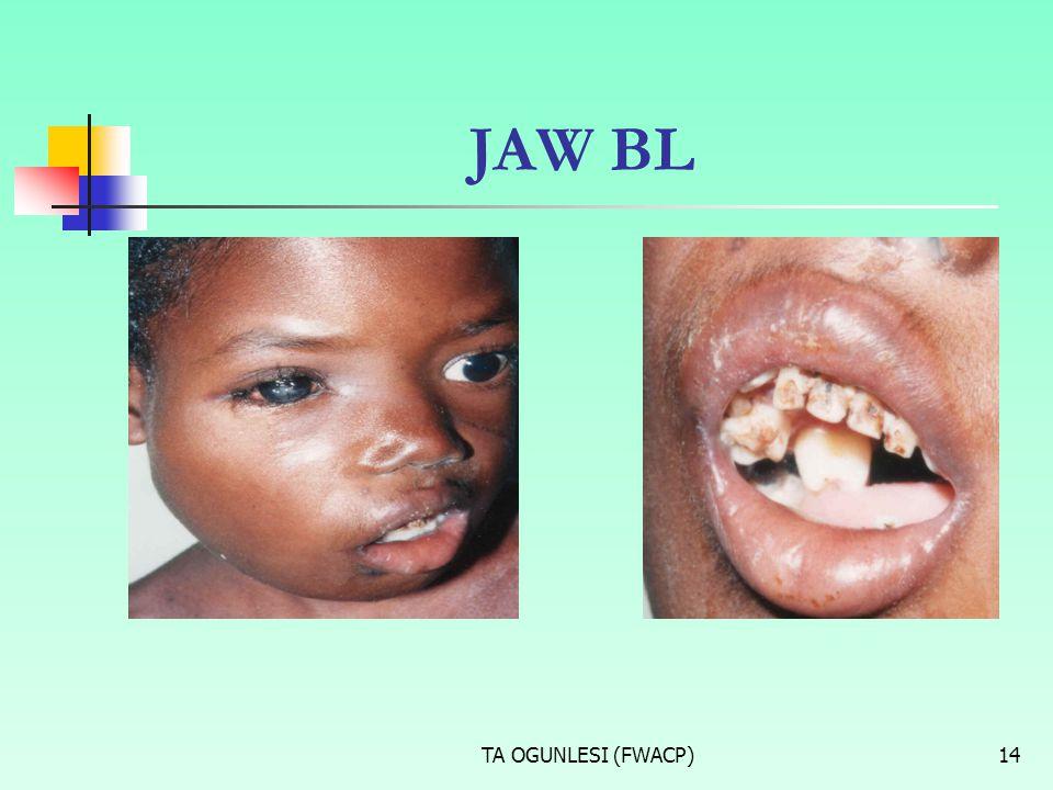 JAW BL TA OGUNLESI (FWACP)