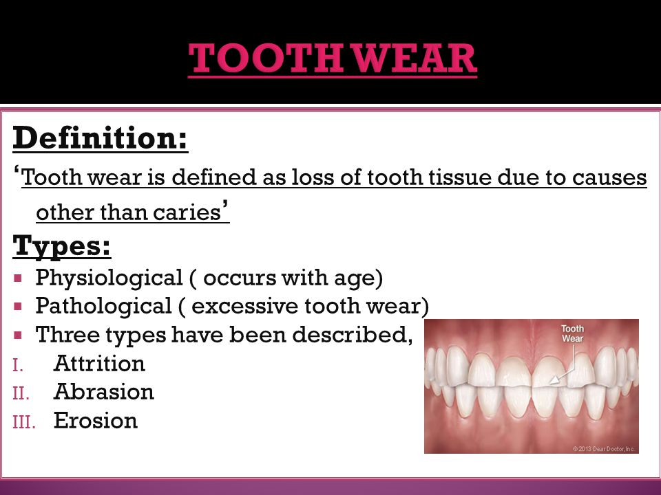 TOOTH WEAR Definition: