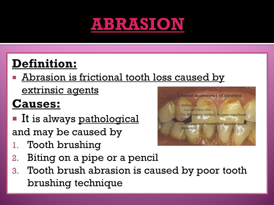 ABRASION Definition: Causes: It is always pathological