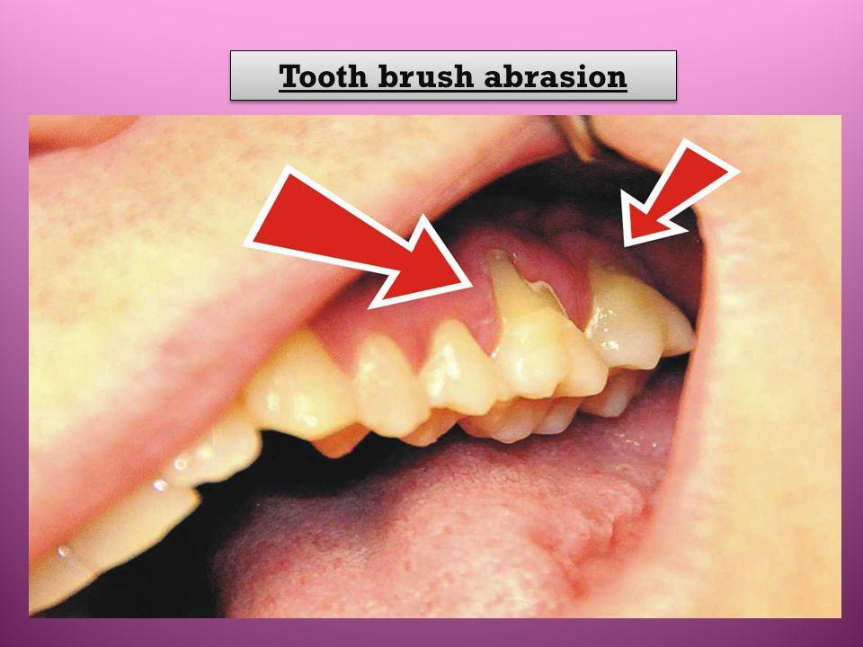 Tooth brush abrasion