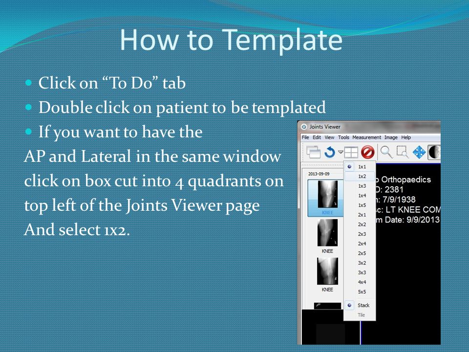 How to Template Click on To Do tab