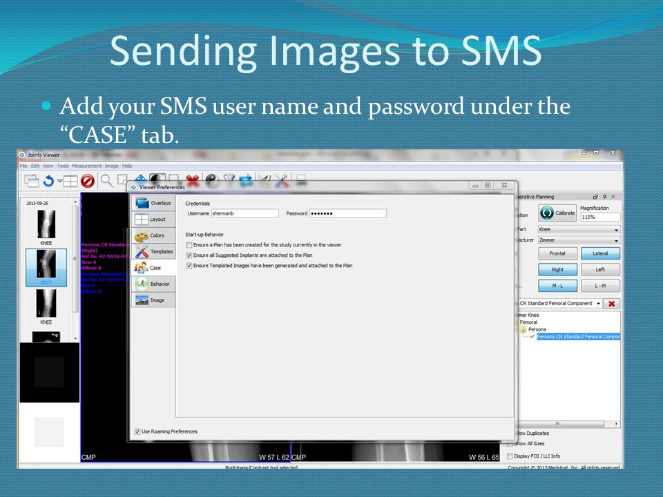 Sending Images to SMS Add your SMS user name and password under the CASE tab.