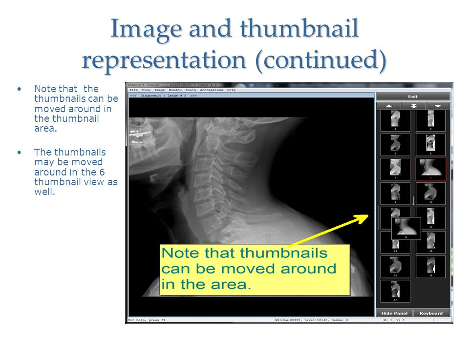 Image and thumbnail representation (continued)