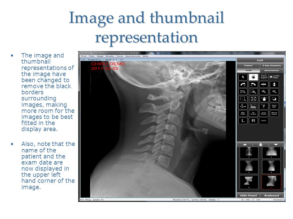 Image and thumbnail representation