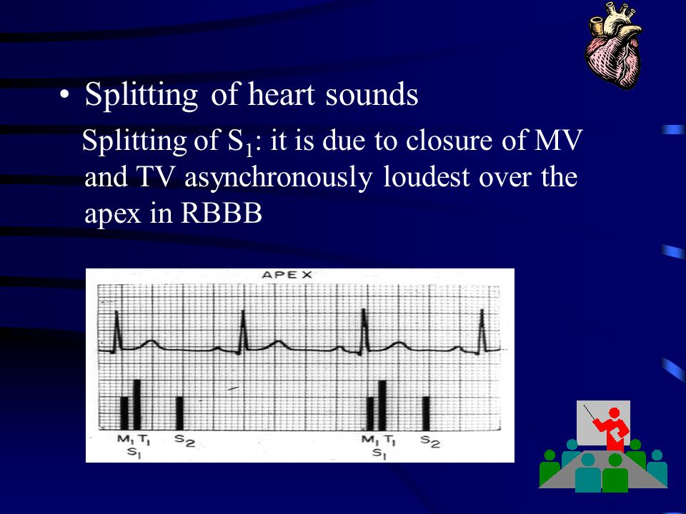 Splitting of heart sounds