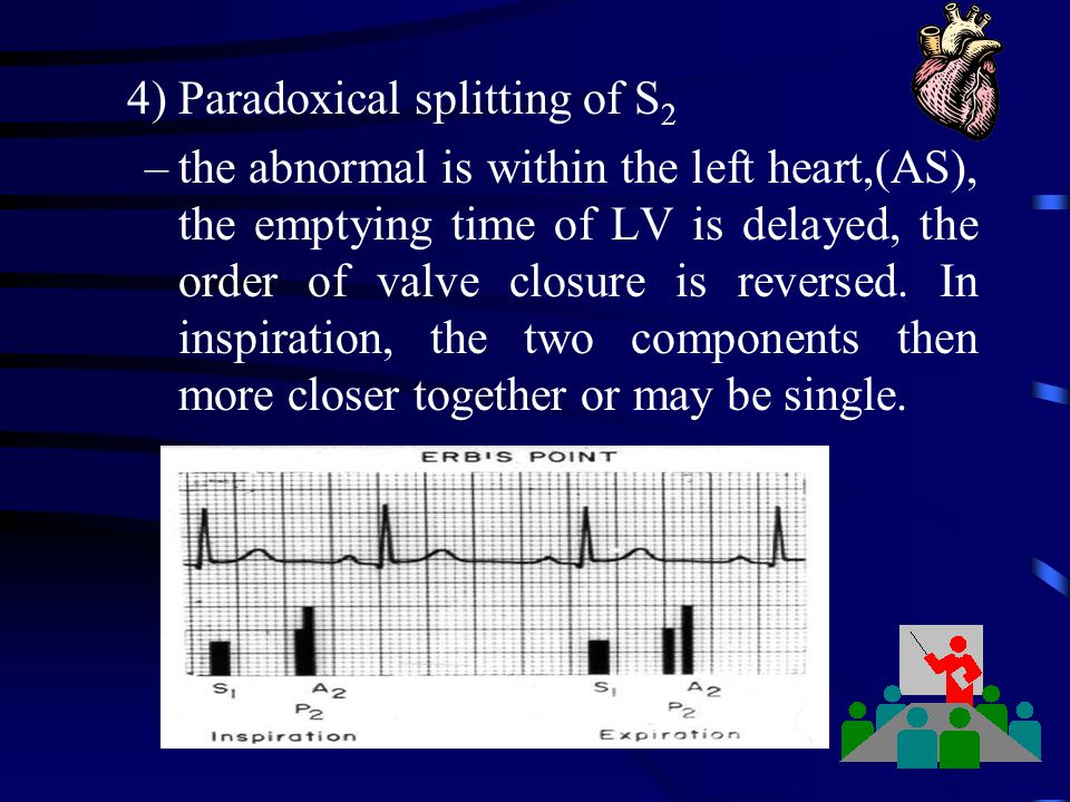 4) Paradoxical splitting of S2
