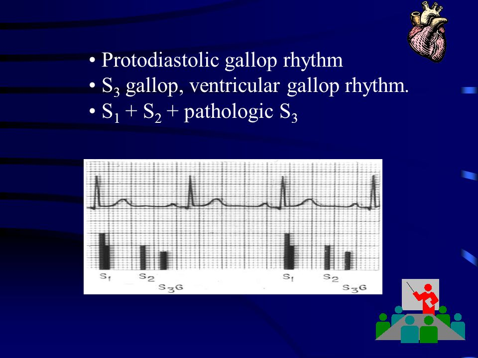 Protodiastolic gallop rhythm