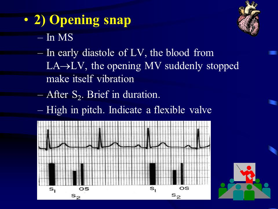 2) Opening snap In MS. In early diastole of LV, the blood from LALV, the opening MV suddenly stopped make itself vibration.